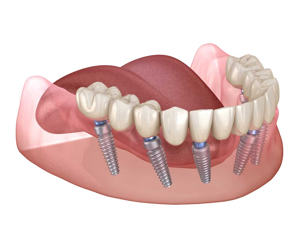 full mouth dental implants via all on 4 implants