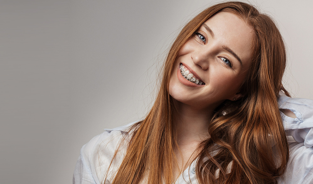 Cost of Braces East Los Angeles