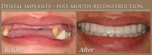 Dental Implant Full Mouth Reconstruction 2