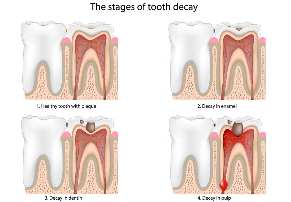 tooth decay treatment east los angeles