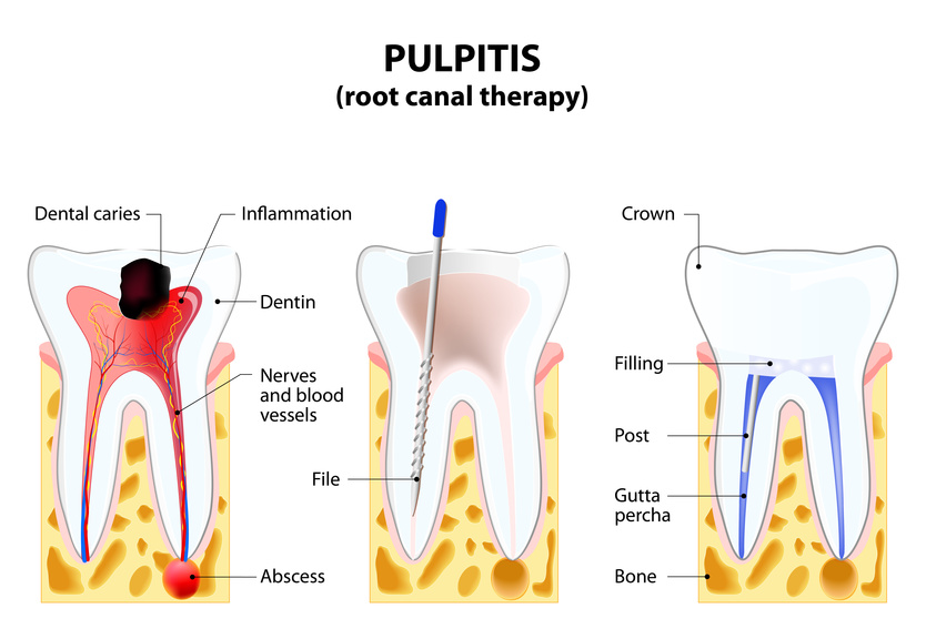 root canal treatment East Los Angeles