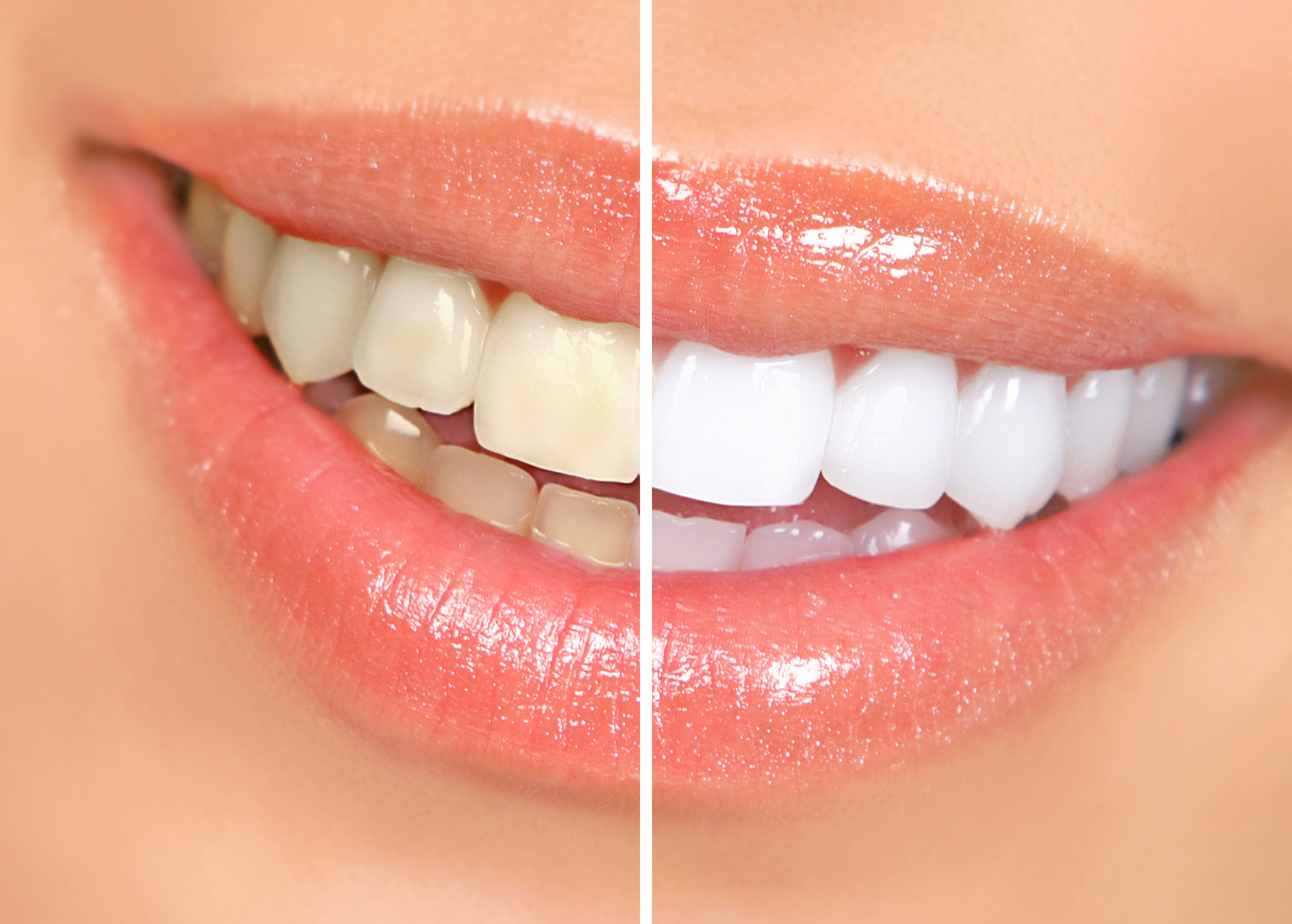 Teeth Cleaning east los angeles