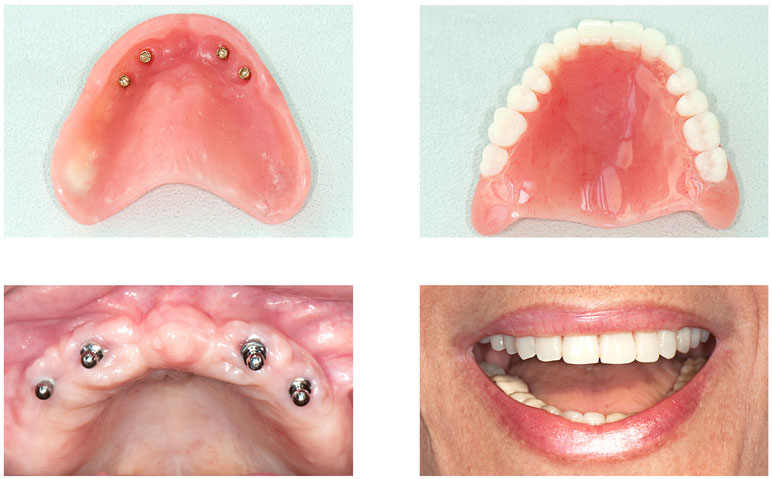dental implants bell ca